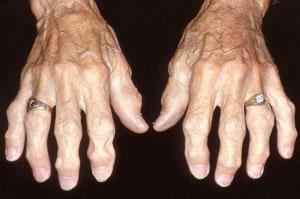 Osteoarthritis_